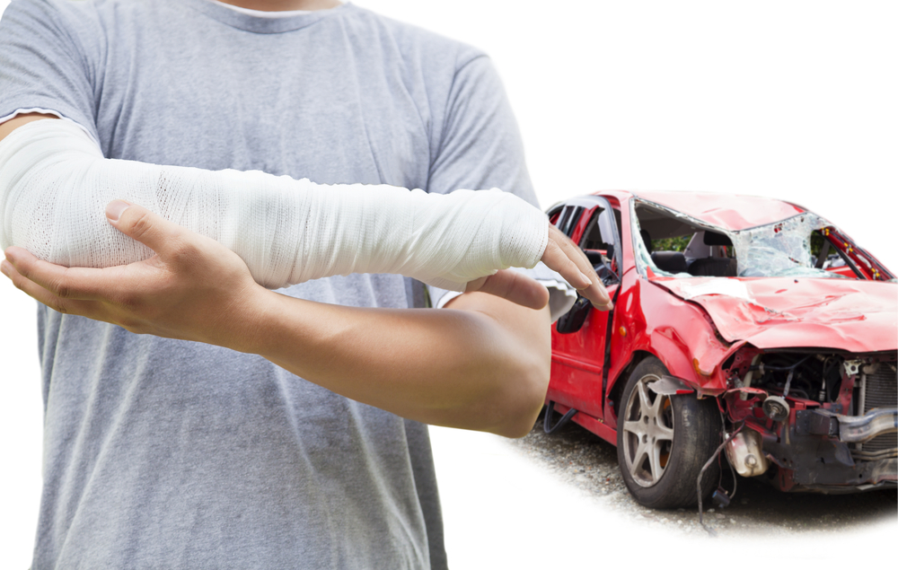 car accident arm injury